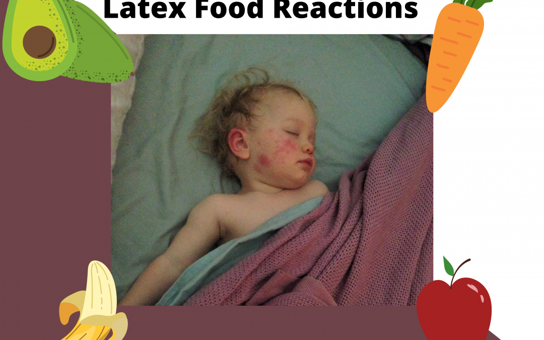 Latex Food Reactions: It's A Thing! Ep 7 Transcript